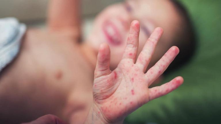 Dấu hiệu dễ nhận biết khi trẻ bị tổ đỉa ở tay chân là nổi mẩn đỏ ngứa