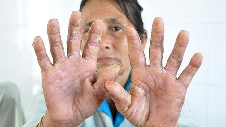 Á sừng liên cầu căn bệnh da liễu dễ tái phát, khó chữa dứt điểm