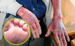 Sớm nhận biết biểu hiện bệnh ngăn ngừa biến chứng