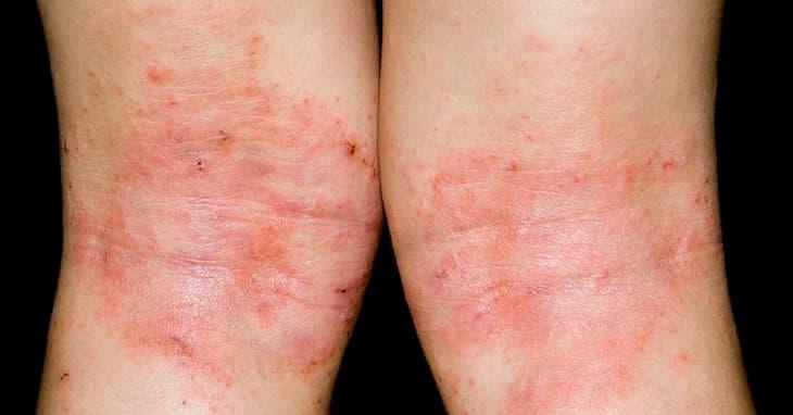 Bệnh chàm là căn bệnh ngoài da gây ngứa ngáy, khó chịu
