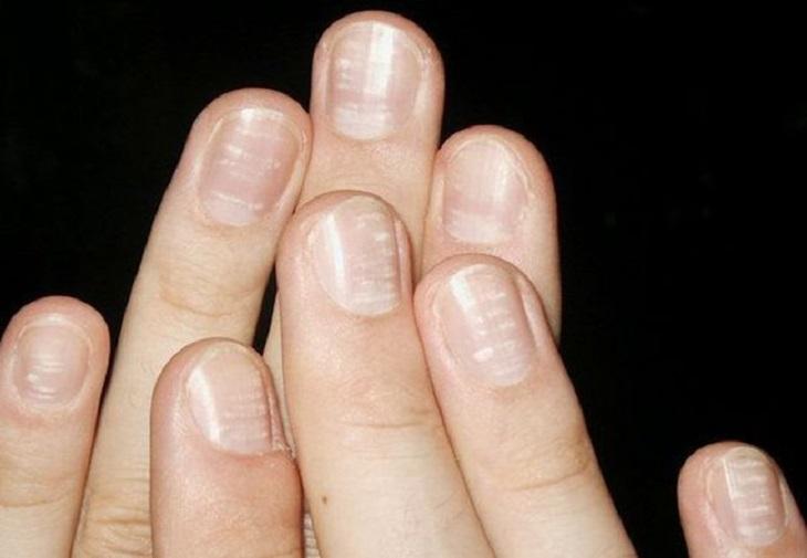 Vảy nến móng tay là bệnh lành tính nhưng gây mất thẩm mỹ