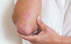 Cách trị Eczema bằng củ quả tốt nhất