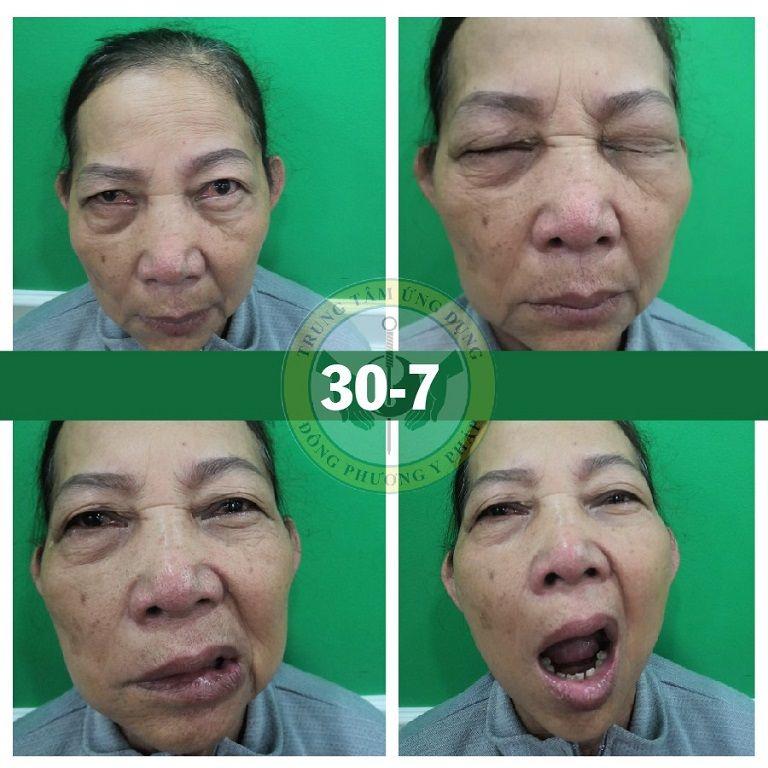Hình ảnh cô Lá sau buổi đầu tiên điều trị liệt dây thần kinh số 7