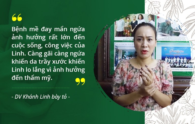 Diễn viên Khánh Linh chia sẻ về tình trạng mề đay gặp phải