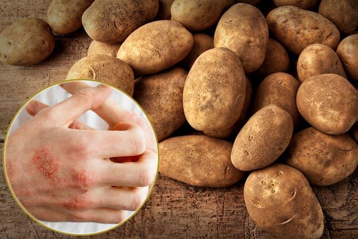 Trị Eczema bằng khoai tây an toàn