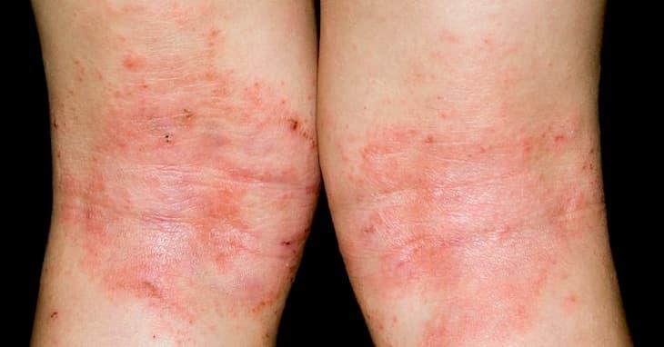 Trị Eczema bằng giấm táo cần kiên trì