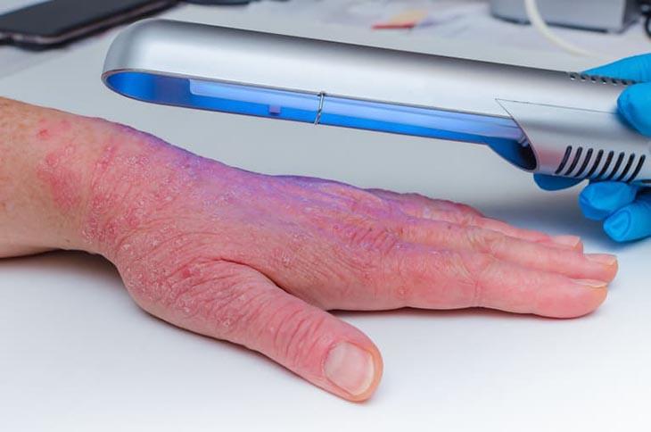 Quang trị liệu - Giải pháp trị bệnh tân tiến, hiệu quả cao