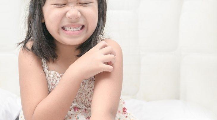 Vảy nến trên da trẻ có tính chất khác nhau