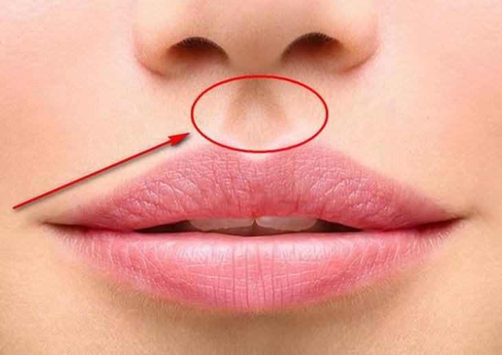 Vị trí của huyệt nhân trung là nằm ở vùng môi trên