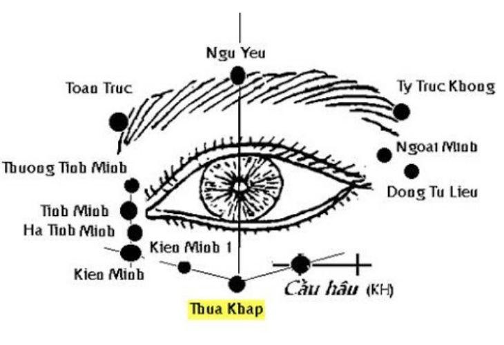 Huyệt Thừa Khấp được phối với nhiều huyệt đạo khác nhằm điều trị các bệnh lý về mắt