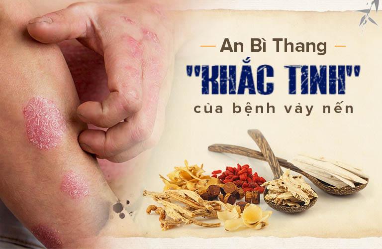 An Bì Thang được đánh giá là một trong những giải pháp chữa vảy nến hiệu quả hàng đầu