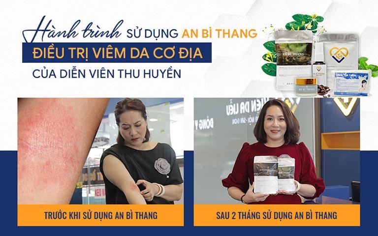 Nghệ sĩ Thu Huyền cải thiện tình trạng viêm da chỉ sau 2 tháng