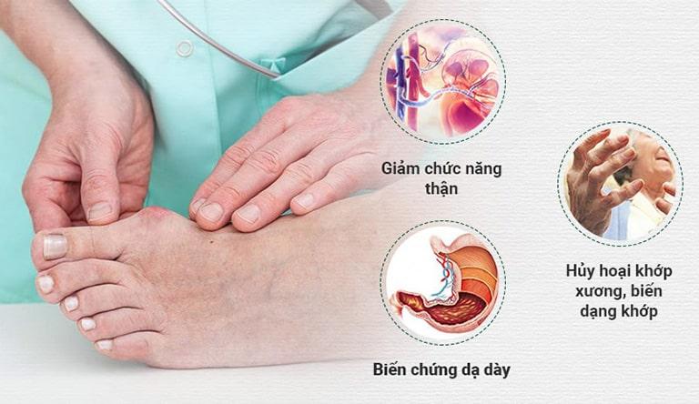 Gout gây biến chứng nguy hiểm nếu không điều trị kịp thời