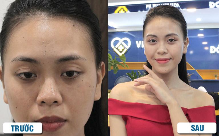 Hình ảnh khách hàng trước và sau khi dùng Hoàn Nguyên trị mụn đầu đen