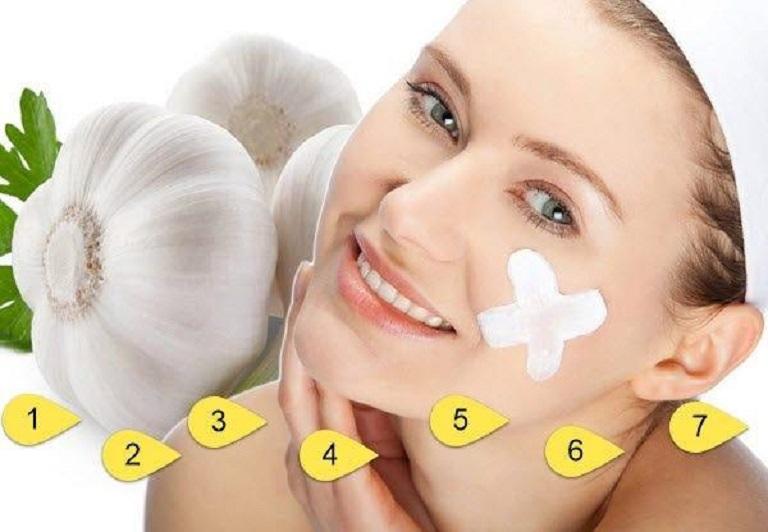 Đắp mặt nạ tỏi giúp giảm viêm sưng nốt mụn hiệu quả