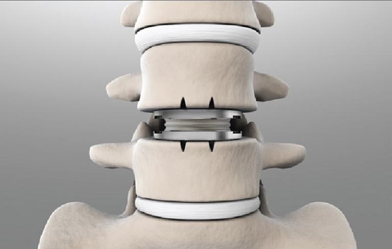 Hình ảnh khối thoát vị đĩa đệm nhân tạo
