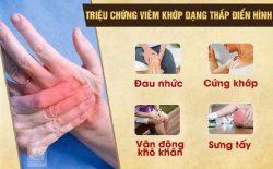Các triệu chứng của bệnh viêm khớp