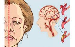 Liệt dây thần kinh số 7 là bệnh không lây truyền, có thể gặp ở bất cứ độ tuổi nào và không phân biệt giới tính.