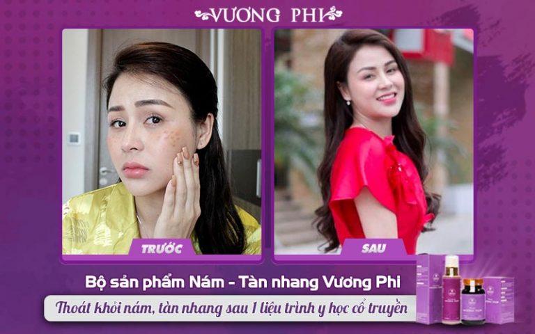 Chị Lương Thu Trang trước và sau khi sử dụng bộ sản phẩm Vương Phi
