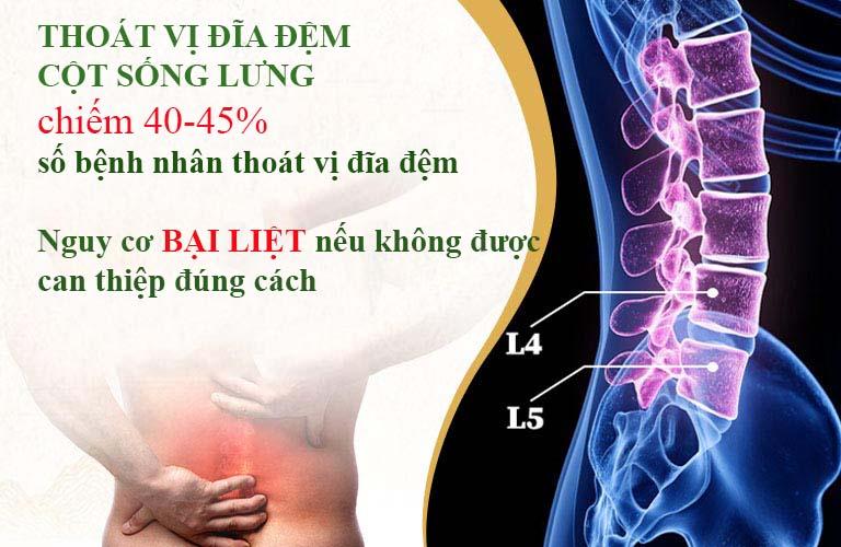 Thoát vị đĩa đệm cột sống lưng là bệnh thường gặp