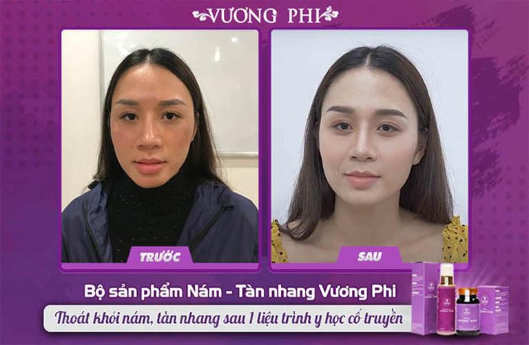Chị Thu Hương (30 tuổi) cải thiện nám mảng tới 80% chỉ sau 2 tháng