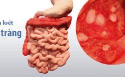 Viêm loét đại tràng: Nguyên nhân - Triệu chứng - Phương pháp điều trị HOÀN TOÀN căn nguyên