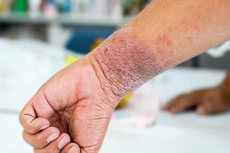 Nếu không được điều trị và chăm sóc đúng cách thì tổn thương da có thể bị thâm nhiễm