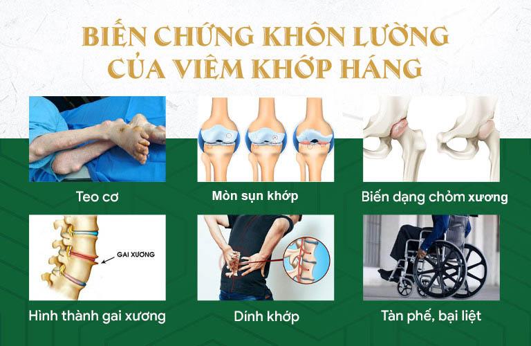 Những biến chứng khôn lường của viêm đau khớp háng
