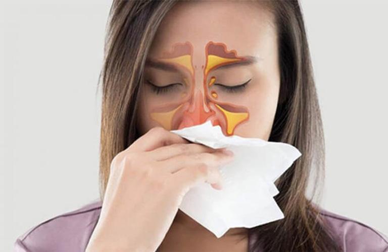 Viêm xoang mãn tính là nguyên nhân phổ biến gây viêm họng hạt