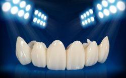 Bọc răng sứ - giải pháp tối ưu cho nụ cười đẹp hoàn hảo.