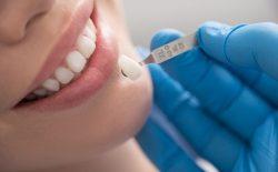Bọc răng sứ số 1 tại Viện Nha khoa Vidental