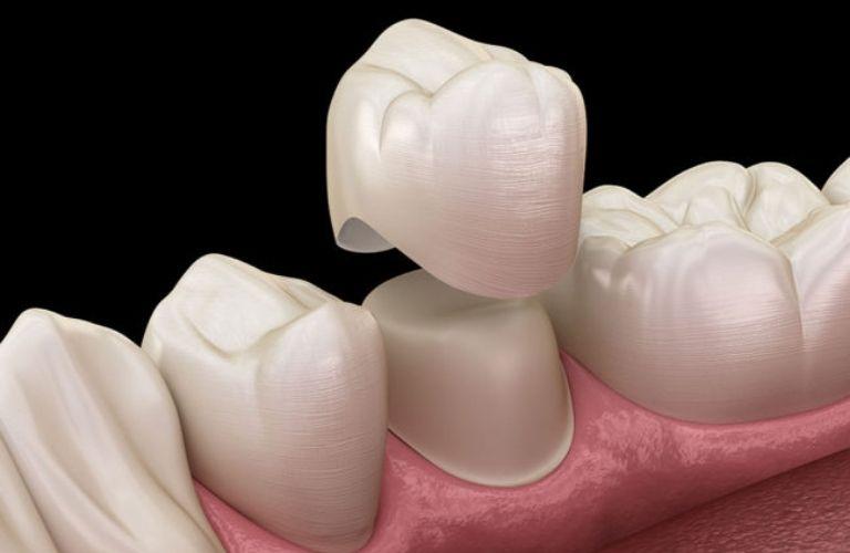 Bọc răng sứ thẩm mỹ đang là xu hướng làm đẹp thu hút sự quan tâm của rất nhiều người