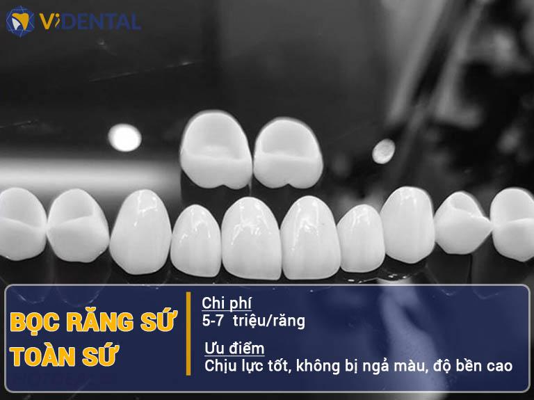 Bọc răng sứ toàn sứ