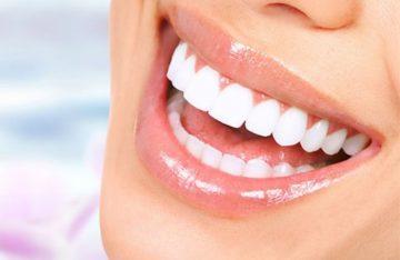 Top 10 địa chỉ bọc răng sứ đáng tin cậy tại Hà Nội.