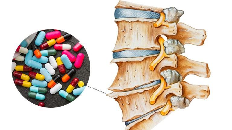 Hết sức cẩn trọng khi sử dụng thuốc Tây chữa gai cột sống