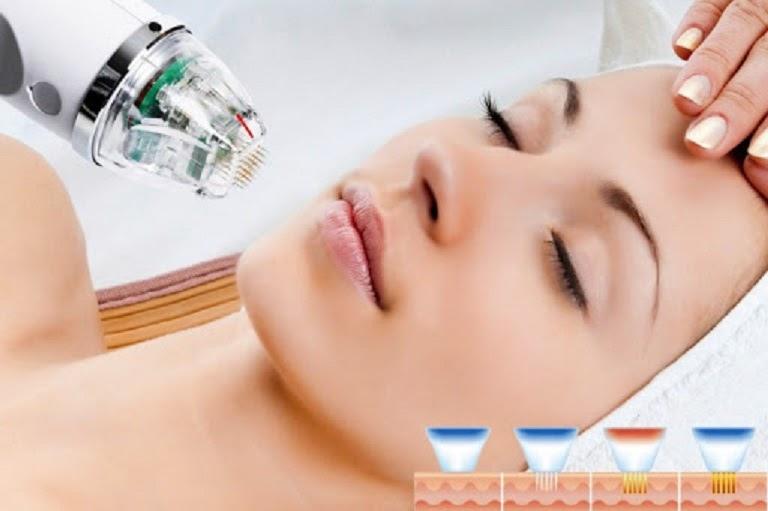 Phi kim vi điển là công nghệ trị mụn và làm đẹp da hiệu quả