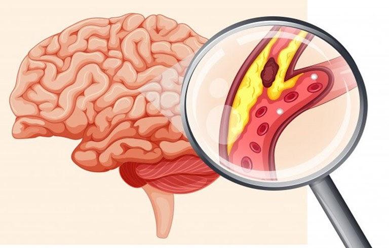 Mô phỏng cục máu đông tích tụ ở não bộ