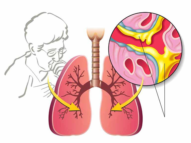 Ho có đờm xanh hoặc đờm vàng là dấu hiệu của nhiễm trùng đường hô hấp