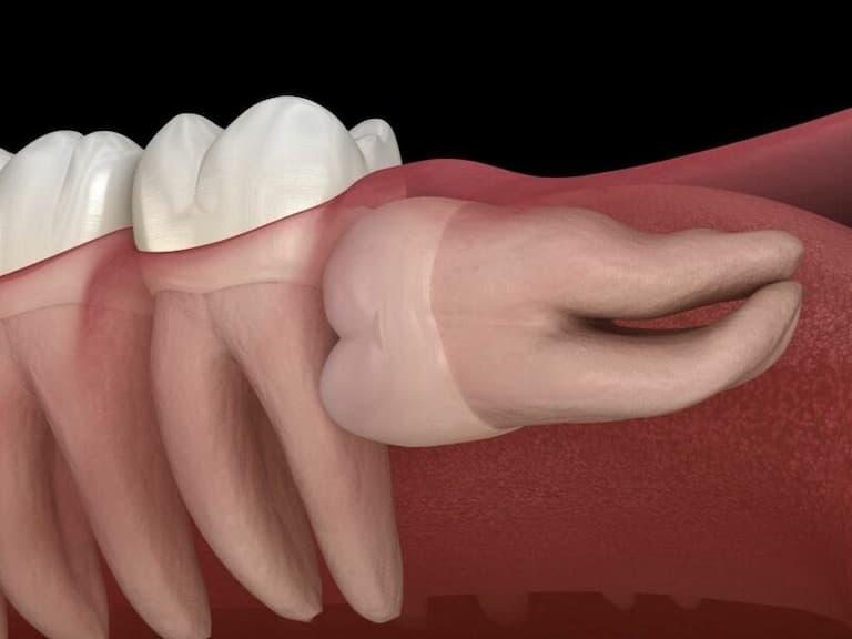 Có nên nhổ răng khôn hay không là thắc mắc của rất nhiều người