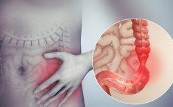 Hội chứng ruột kích thích là gì? Nguyên nhân, triệu chứng và phương pháp điều trị AN TOÀN