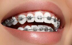 Niềng răng mắc cài kim loại là một trong những phương pháp phổ biến nhất hiện nay