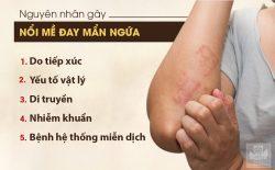 Một số nguyên nhân chính gây ra bệnh nổi mề đay