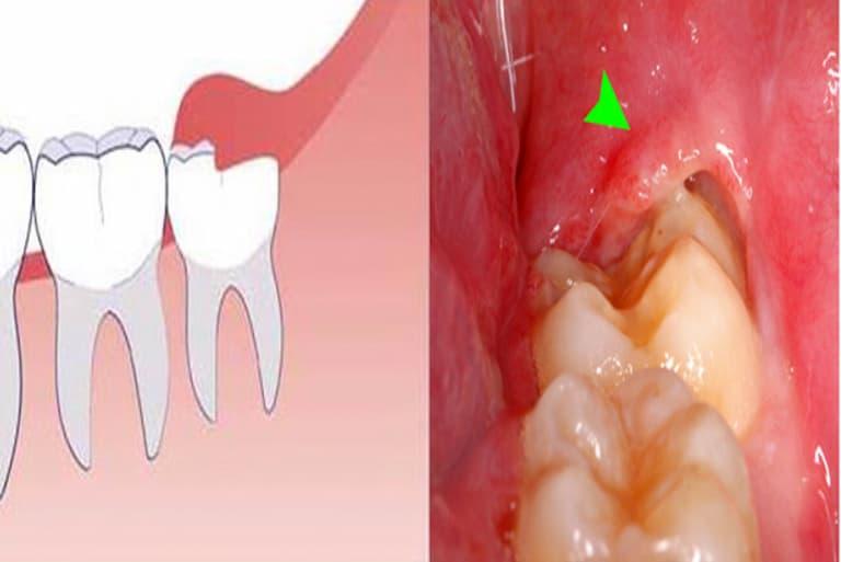 Răng khôn gần như không có tác dụng về mặt thẩm mỹ hay chức năng nhai