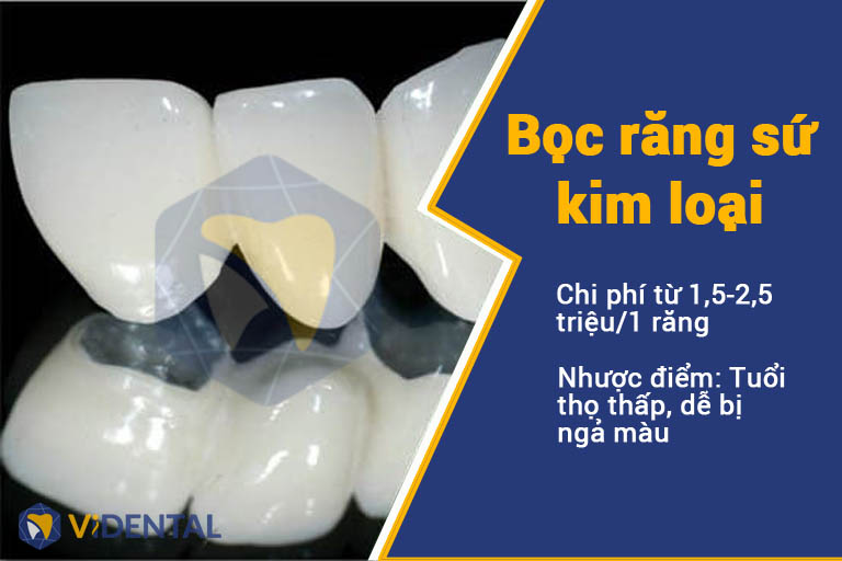 Bọc răng sứ kim loại