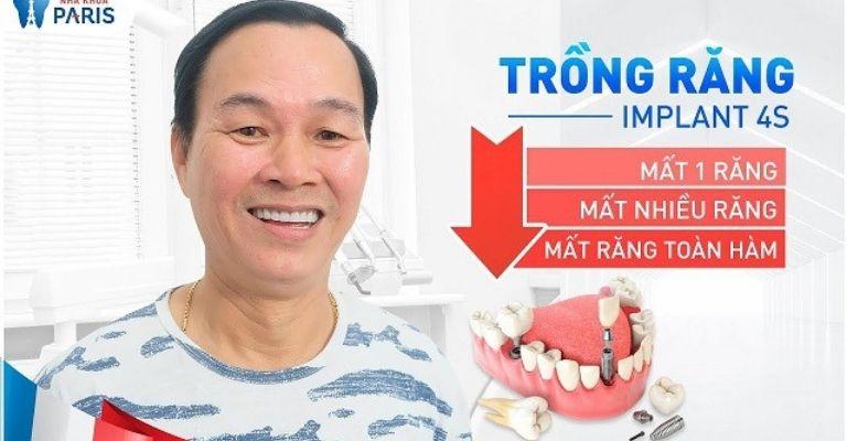 Nha khoa Paris nổi trội với công nghệ trồng răng implant 4S.