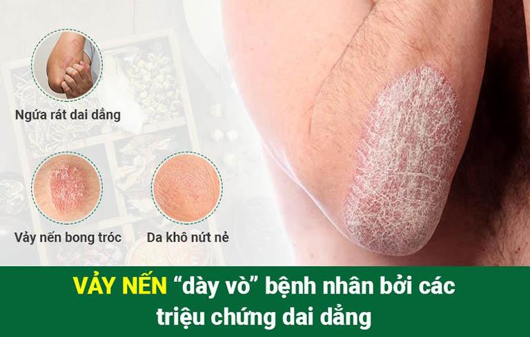 Vảy nến là bệnh lý mãn tính về da với nhiều triệu chứng khó chịu