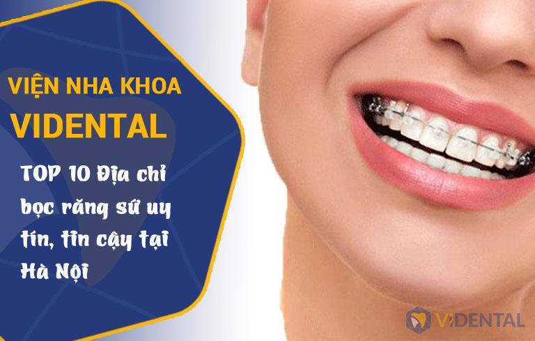 Vidental - Địa chỉ bọc răng uy tín tại Hà Nội