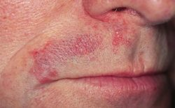 Viêm da tiết bã là bệnh gì?