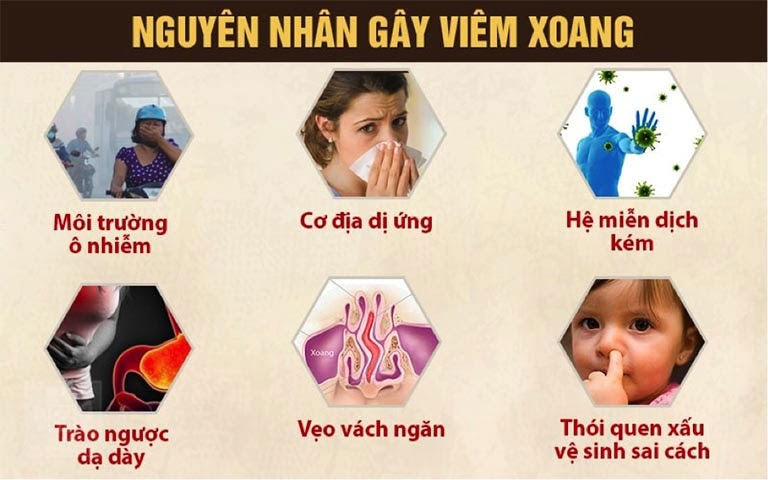 Một số nguyên nhân chính dẫn đến bệnh viêm xoang