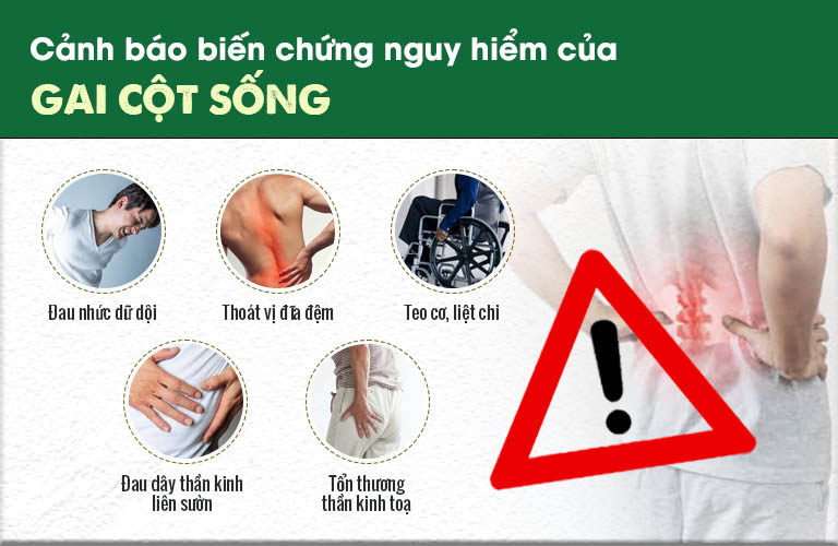 Gai cột sống gây tê cứng cánh tay, đau nhức và cử động kém linh hoạt